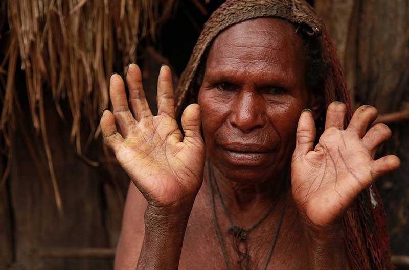 Почему многие женщины племени Дани без пальцев