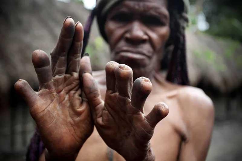 Умер родственник — отрезали палец Племя Дани является самым многочисленным племенем на острове Новая Гвинея