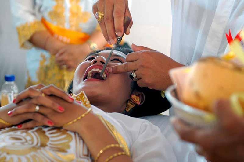 Для чего подпиливают зубы в Индонезии