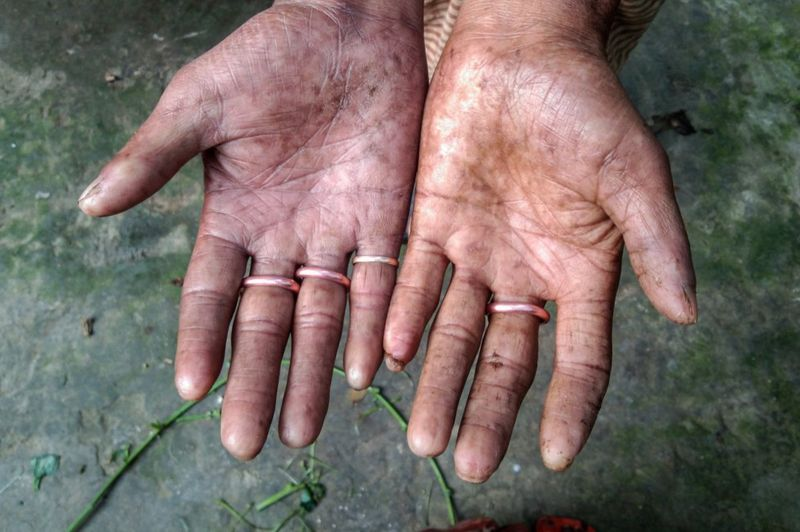 Руки без отпечатков пальцев